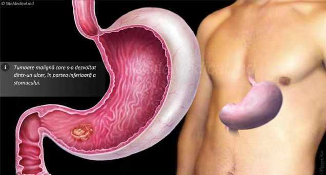 cancer-gastric