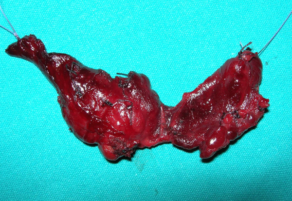 Total-thyroidectomy-for-a-MEN-2B-patient-3-years-old-Macroscopic-evidence-of-carcinoma.png